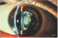 Example of a moderate cataract