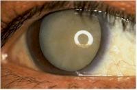 Example of a advanced cataract