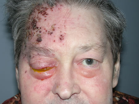 The outcome of patients with herpes zoster ophthalmicus 2