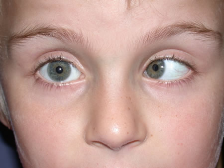 Children with squint should see an ophthalmologist soon adults with
