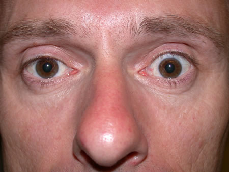 eye problems and diseases Diseases and disorders many eye diseases have no early symptoms they may be painless, and you may see no change in your vision until the disease has become quite advanced.